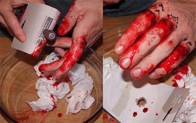 Odstranění tetování - dermabrasion