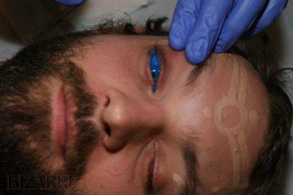 Oční tetování
